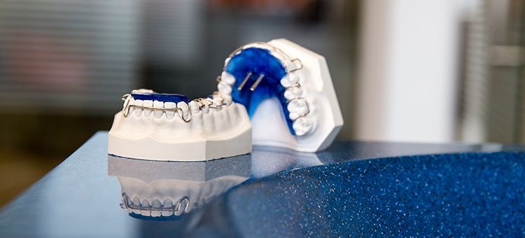 Herausnehmbare Zahnspange Dr. Grabner